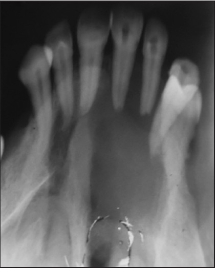 Figure 3: Occlusal radiograph revealed hypodense solitary radiolucent lesion involving the right side of anterior hard palate