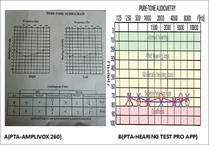 Figure 3: Comparison between the pure-tone audiometry results using Amplivox 260 and Hearing Test Pro in a patient with severe hearing loss (Red: Right; Blue: Left)