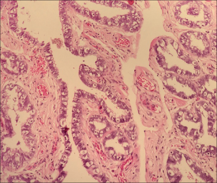 Figure 2: Fimbriated end epithelium with clear cell change (H and E, × 200)